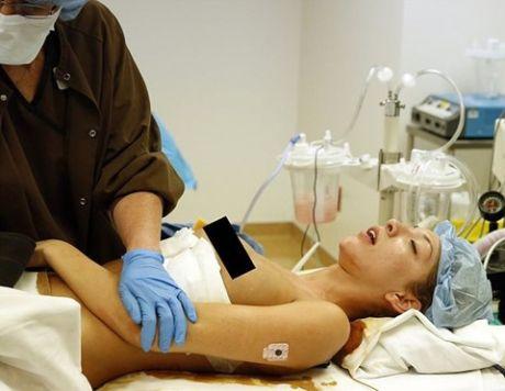 Как делают имплантаты груди. Фотографии операции Фарры Абрахам