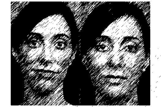 Женщина сделала три пластические операции ради идеального селфи